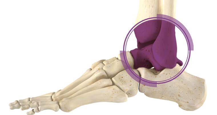 Операция по замене суставов лодыжка