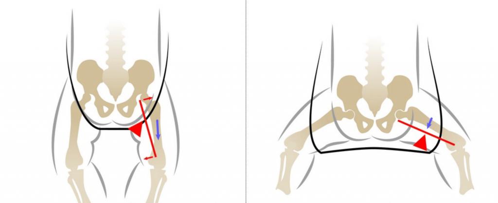 Дисплазия тазобедренных суставов у взрослых симптомы лечение
