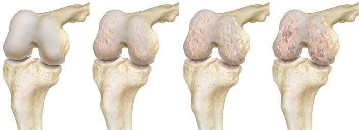 Лечение коленного сустава основные болезни и методы