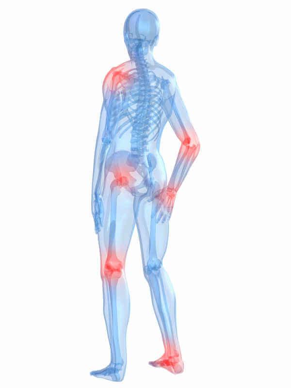 Болят суставы при ВИЧ: что делать с проблемой