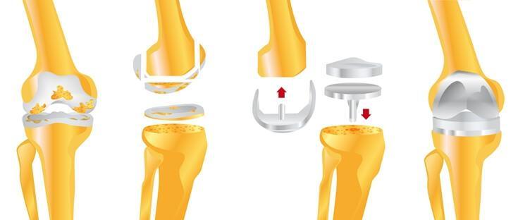 Этапы установки эндопротеза коленного сустава