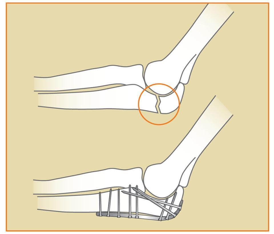 Изображение - Хирургия локтевого сустава repoziya