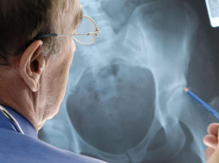 Изображение - Тазобедренный сустав лечение упражнения soh