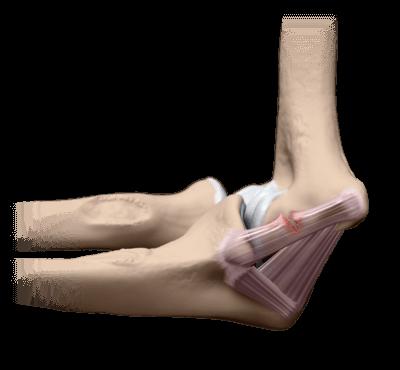 Травма связок локтевого сустава