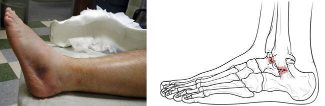 Изображение - Где делают операции на голеностопном суставе travma1