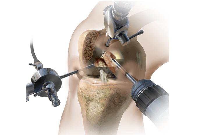 Изображение - Артроскопия коленного сустава при повреждении мениска Skrinshot-2017-02-15-11.32.37
