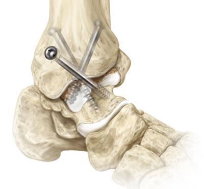 Осложнения после эндопротезирования голеностопа