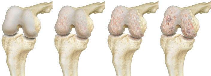 Описание операции по эндопротезированию коленного сустава