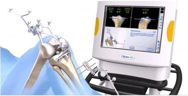 Эндопротезирование коленного сустава стоимость протеза