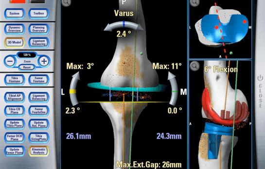 Изображение - Сколько стоит протезирование коленного сустава в германии navigatsiya1