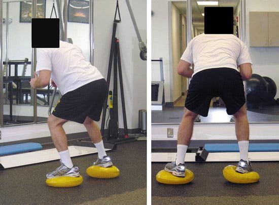 Отек колена после эндопротезирования - Лечение Суставов