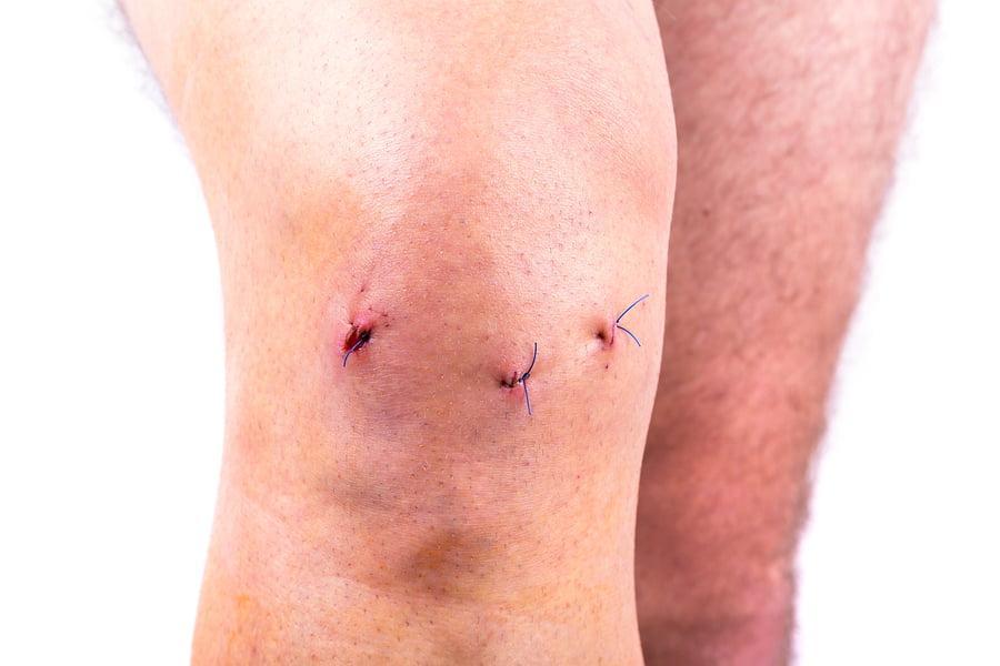 Шов после эндопротезирования тазобедренного сустава