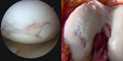Биопротез коленного сустава - Про суставы