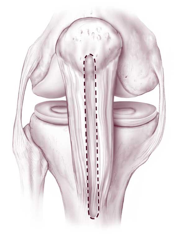 Изображение - Артроскопия передней крестообразной связки коленного сустава iz-nadkolennika