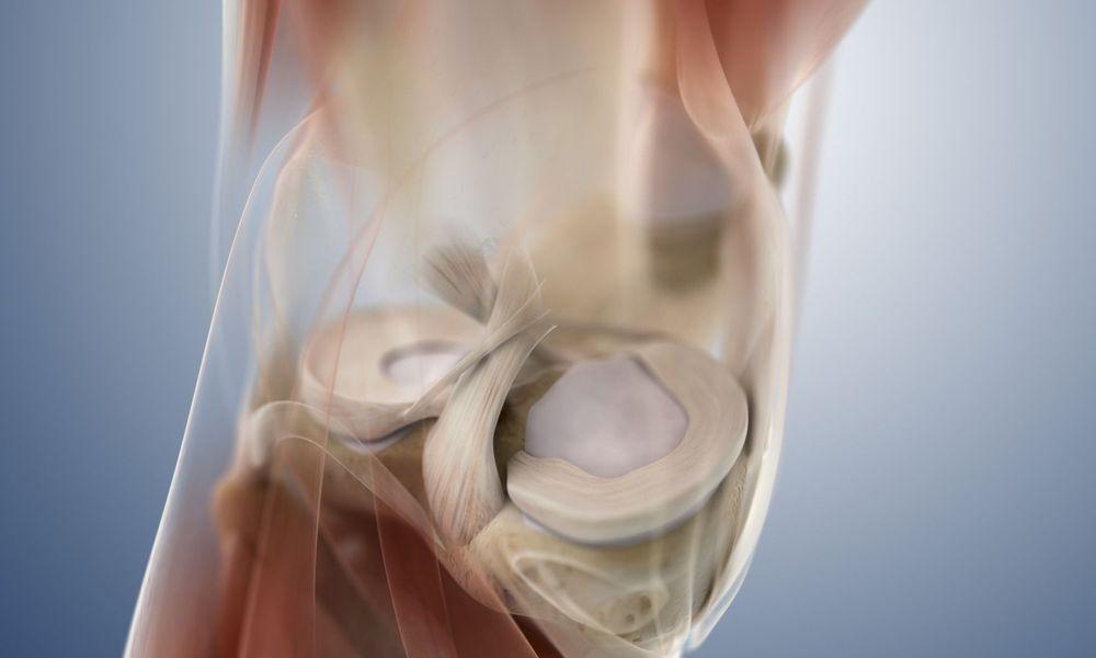 Проблемы и последствия удаления мениска коленного сустава