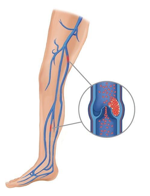 Замена тазобедренного сустава — Суставы