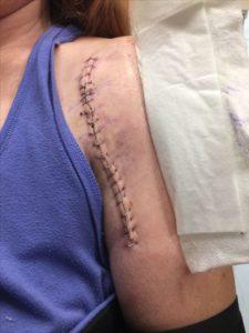 Шрам после реверсивного эндопротезирования плечевого сустава