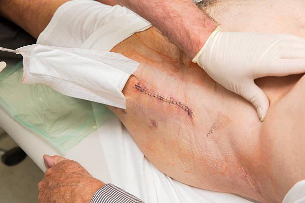 Реабилитация после эндопротезирования голеностопного сустава