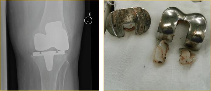 Отек коленного сустава после эндопротезирования