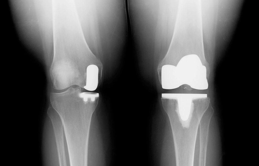 Где можно сделать эндопротезирование коленного сустава бесплатно в