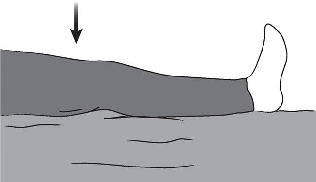Скованность в коленном после эндопротезирования