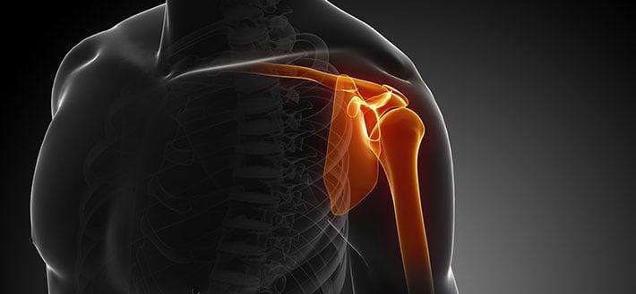 Эндопротезирование плечевого сустава: реабилитация и восстановлению функций руки, ЛФК и физиотерапия