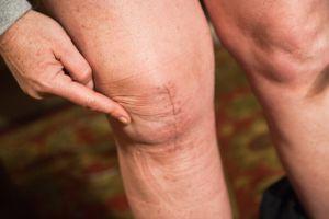 Массаж коленного сустава после операции эндопротезирования: польза и вред, правила выполнения