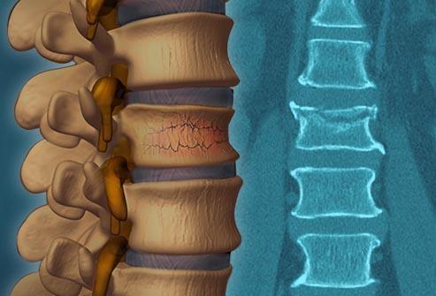 Что такое компрессионный перелом позвоночника: лечение и реабилитация