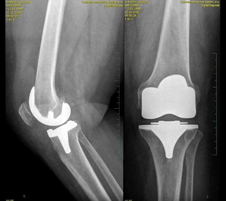 Изображение - Нужна ли операция на тазобедренный сустав Skrinshot-2017-07-11-14.25.02