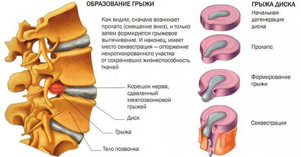 Грыжа позвоночника симптомы и лечение фото