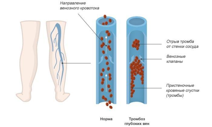 Замена двух коленных суставов одновременно(билатерально)