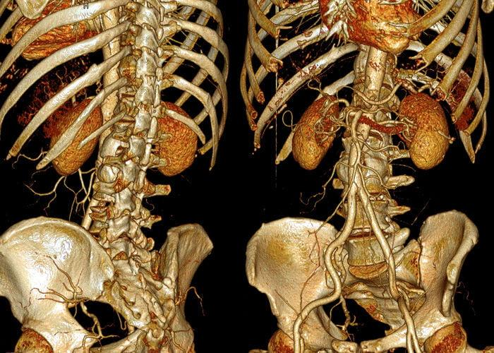 Что нельзя делать при грыже поясничного, грудного или шейного отдела позвоночника: противопоказания и ограничения