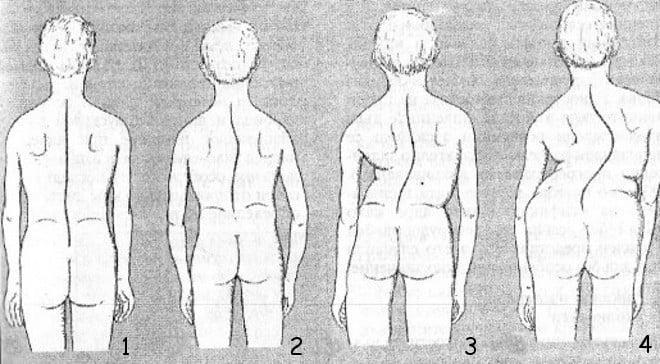 levostoronniy-skolioz-grudnogo-otdela-pozvonochnika-1-stepeni-foto.jpg