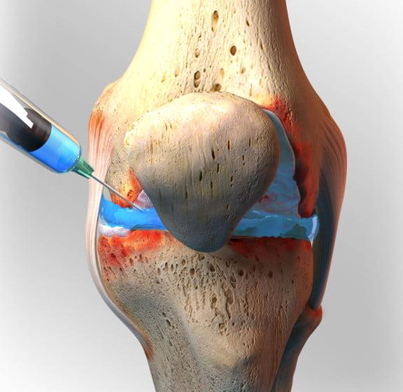 Можно ли делать операцию по замене коленного сустава