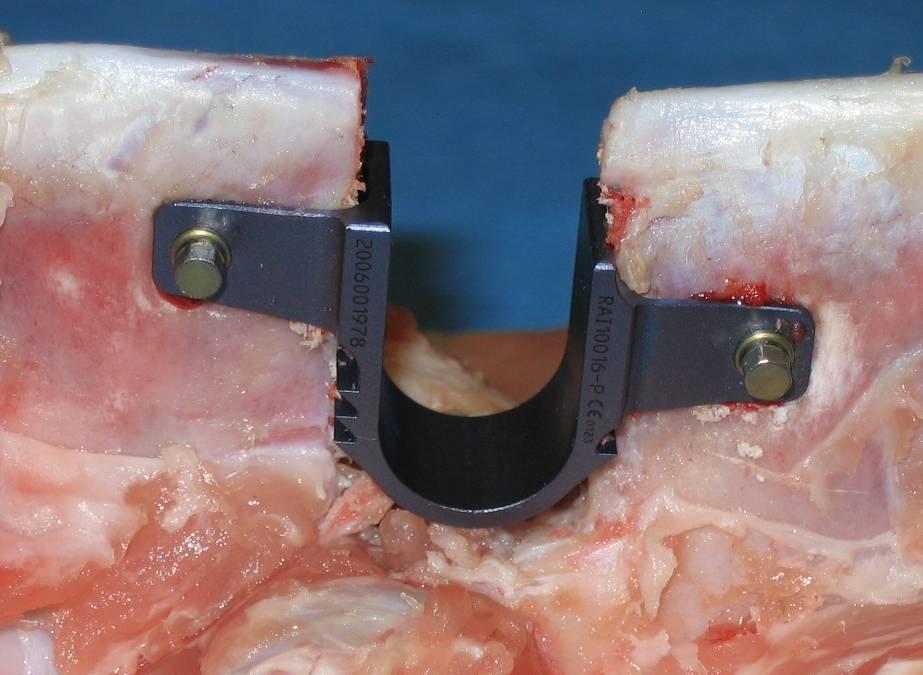 Декомпрессионная ламинэктомия - удаление дуги позвонка. Ламинэктомия позвоночника: что это, как проходит операция и последствия.