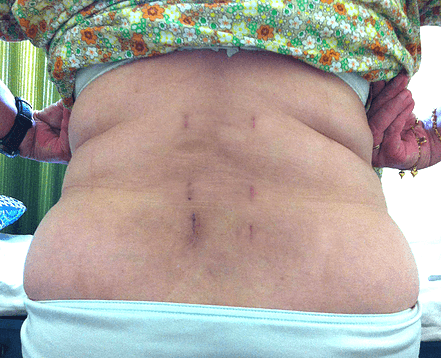 блог меня болит спина после операции на позвоночнике просто