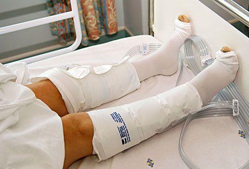 В сауну после эндопротезирования коленного сустава