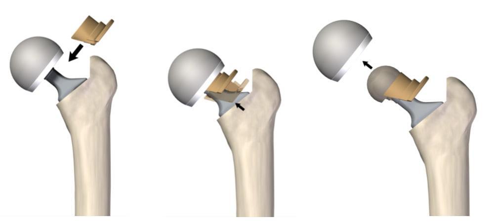 Перелом бедра после эндопротезирования тазобедренного сустава