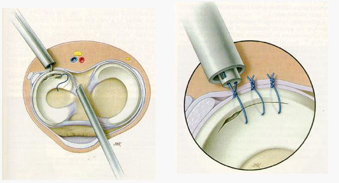 Артроскопия мениска коленного сустава: проведение и реабилитация после резекции и удаления
