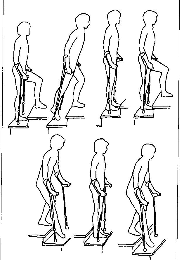 Изображение - Ходунки после операции коленного сустава какие нужны 74009_html_7f249b5