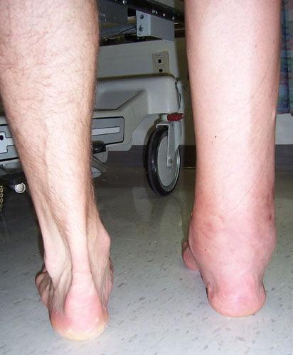 Артродез голеностопного сустава реабилитация после операции