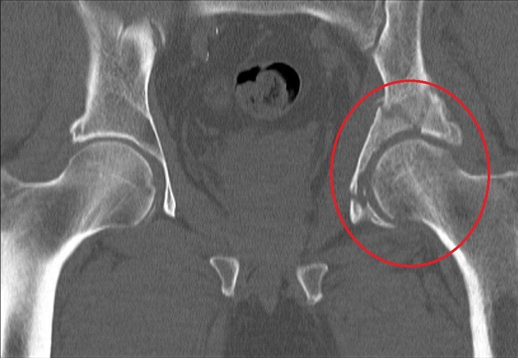 Перелом вертлужной впадины симптомы лечение и последствия