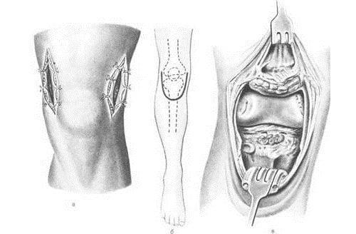 Кому назначается и как проводится артротомия крупных суставов? Артротомия коленного сустава: показания, подготовка и проведение Артротомия коленного сустава время нахождения в стационаре.