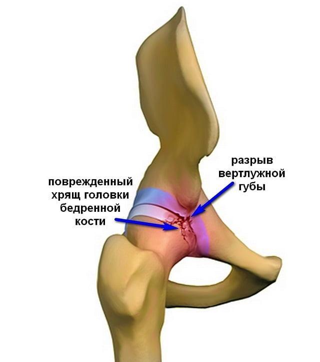 Изображение - Рентгенография тазобедренных суставов по лаунштейну Artrit-tazobedrennogo-sustava4