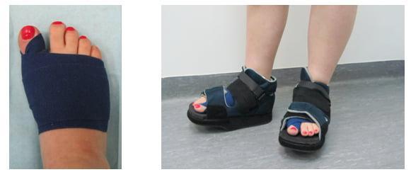 Лечение вальгусной деформации стопы без операции