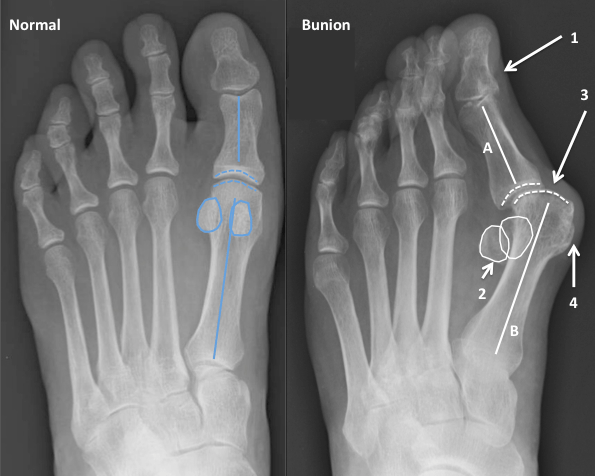 Операция при деформации большого пальца стопы ( )