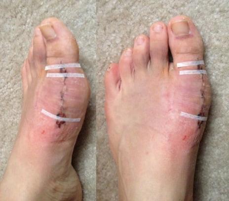 Эндопротезирование сустава большого пальца ноги
