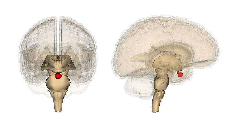 Аденома гипофиза головного мозга – последствия