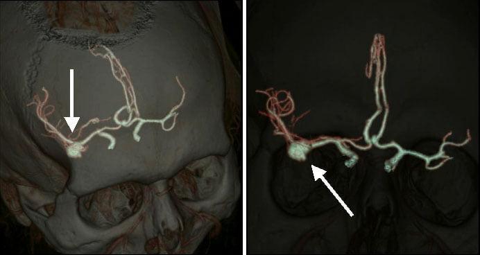 Аневризма сосудов головного мозга: сипмтомы, причины возникновения, диагностика, лечение и прогноз - Лечение в Израиле, Медицина Израиля