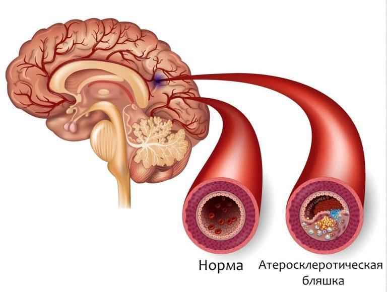 Разрыв аневризмы сосудов головного мозга симптомы